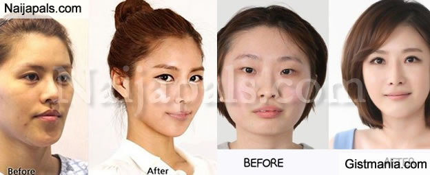 south korea plastic surgery rate