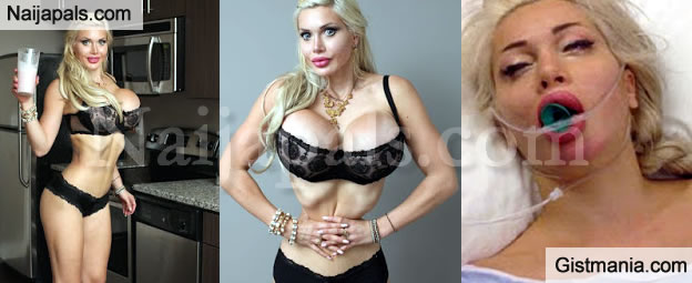 762a96a99d Popular Barbie Model Close To Death After Excessive Use Of Waist Trainer -  Gistmania