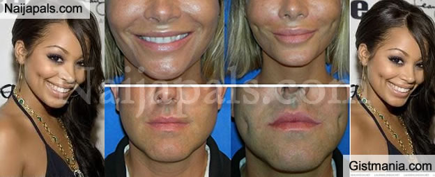 Dimpleplasty ! People Now Have Surgery To Give Them Fake Dimples