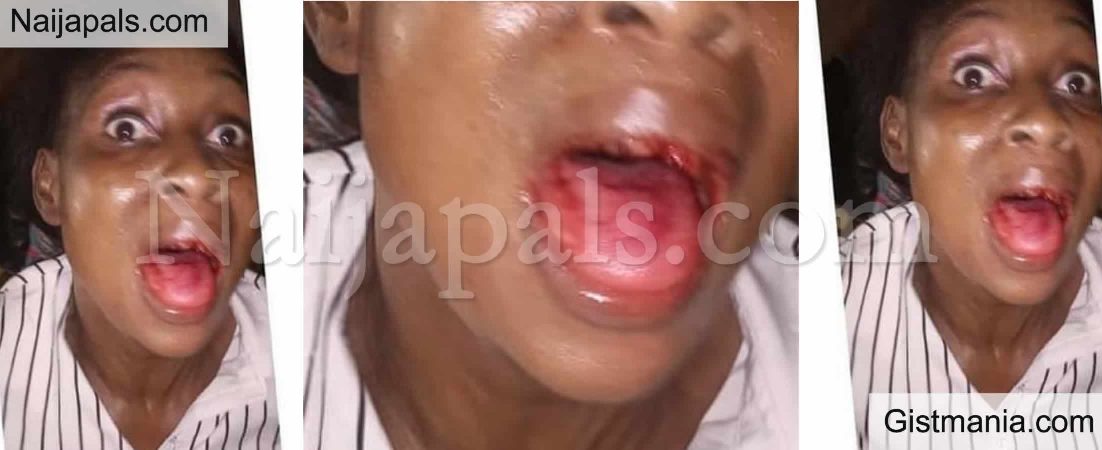 <img alt='.' class='lazyload' data-src='https://img.gistmania.com/emot/comment.gif' /> <b>Lady, Pleads For Her Abusive Husband To Be Freed After Knocking Off Her Front Teeth</b>