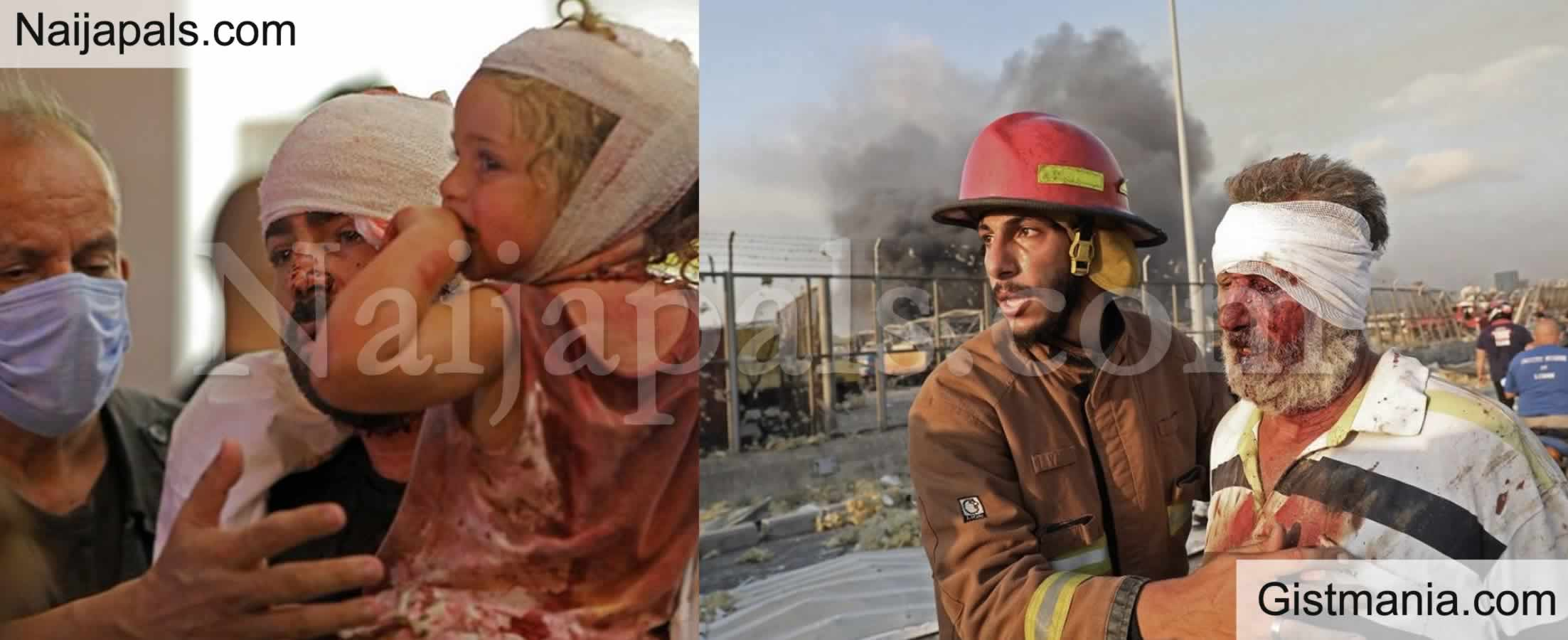 <img alt='.' class='lazyload' data-src='https://img.gistmania.com/emot/cry.gif' /> <b>Over 2,200 People Injured and Dozens Dead In Beirut Blast In Lebanon (More Videos)</b>