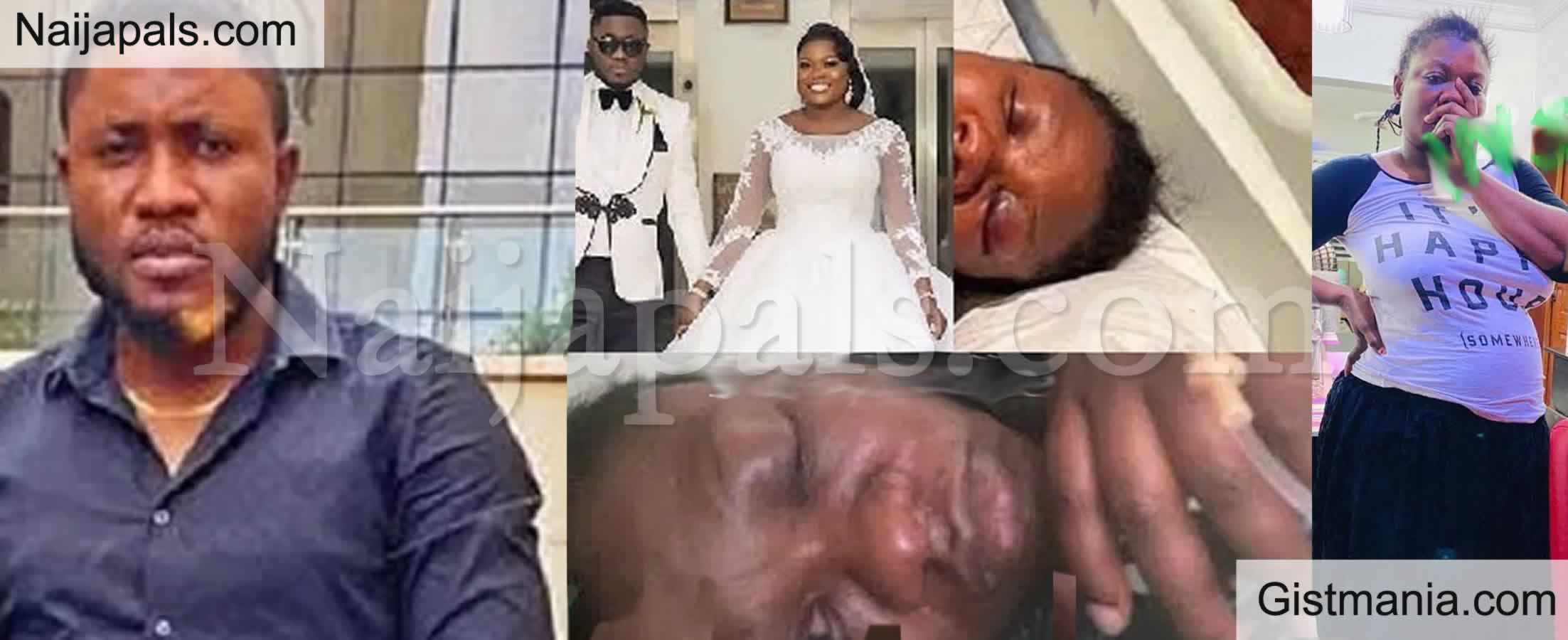 <img alt='.' class='lazyload' data-src='https://img.gistmania.com/emot/broken_heart.gif' /> <b>Man, Desmond Ehimuah Beats His 8-months Pregnant Wife into Coma in Lagos</b> (Sad Photos)