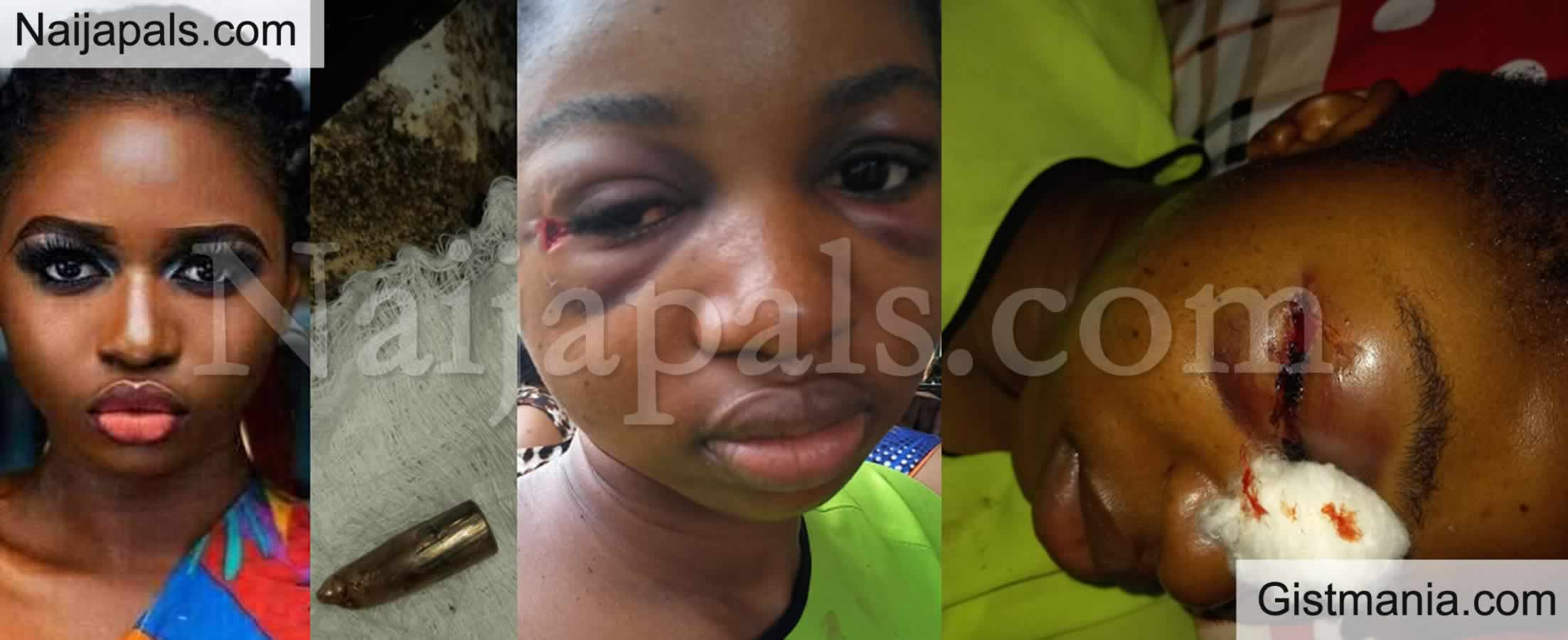 <img alt='.' class='lazyload' data-src='https://img.gistmania.com/emot/shocked.gif' /> <b>After 5 Days With Bullet In Her Head, Nigerian Lady Favour Grey Miraculously Survives</b> (Photos)