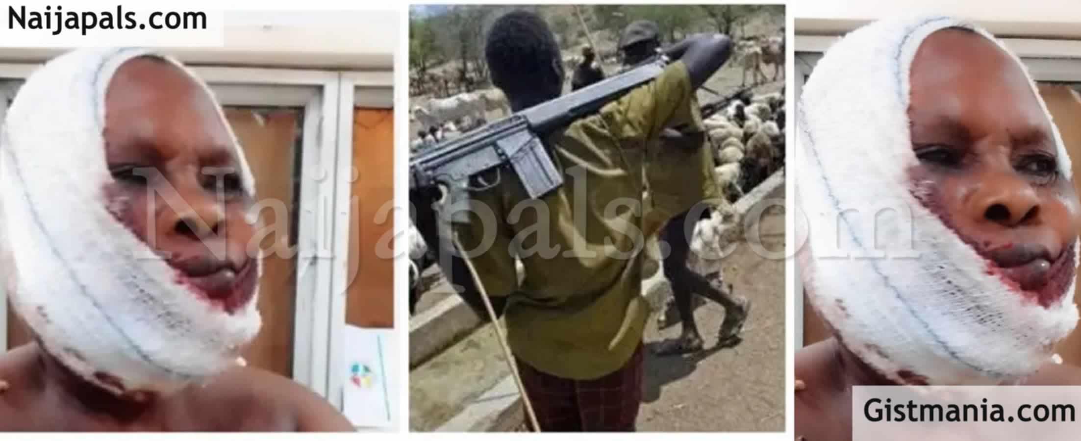 <img alt='.' class='lazyload' data-src='https://img.gistmania.com/emot/shocked.gif' /> <img alt='.' class='lazyload' data-src='https://img.gistmania.com/emot/video.gif' /><b>Fulani Herdsmen Shoot, Batter Woman, Morenikeji Salami While Driving To Her Site In Ogun</b> (Video)