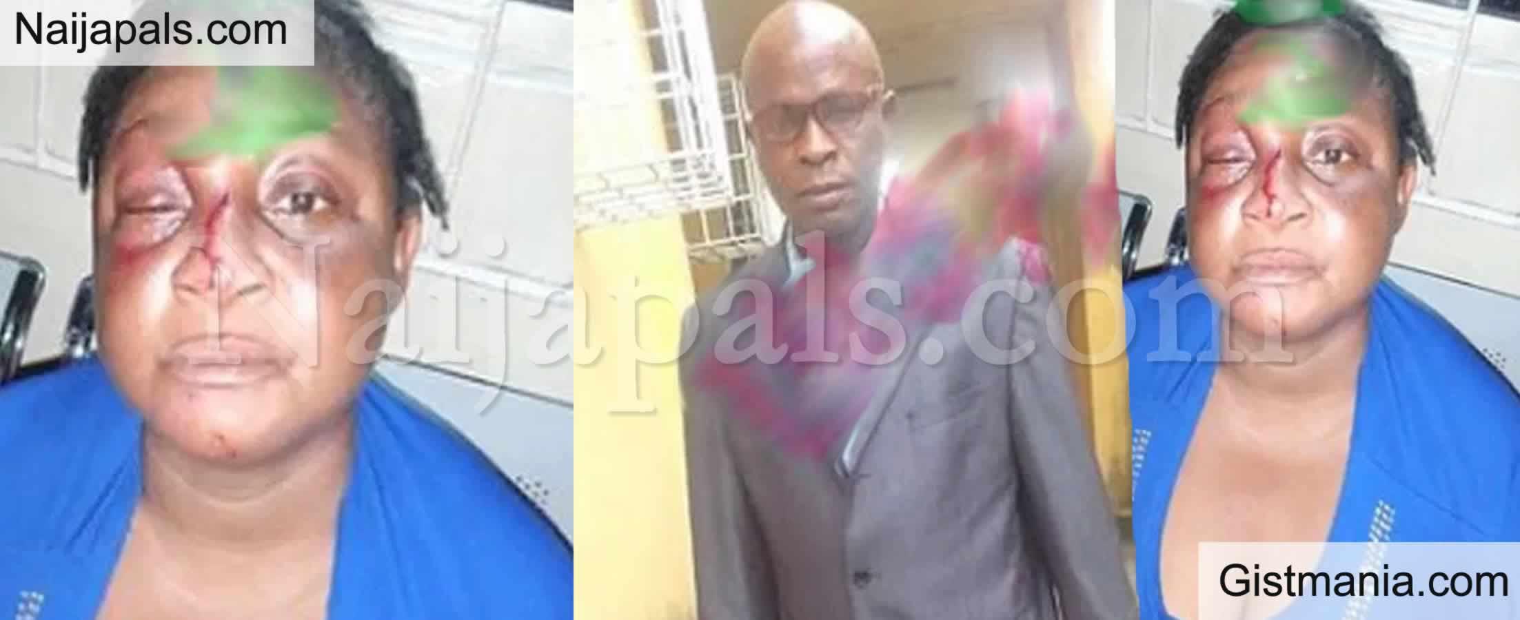 <img alt='.' class='lazyload' data-src='https://img.gistmania.com/emot/broken_heart.gif' /> <b>Man, Peter Otebene Beats Wife Blue-Black Over An Argument on Ceiling Fan in Lagos</b> (Photos)