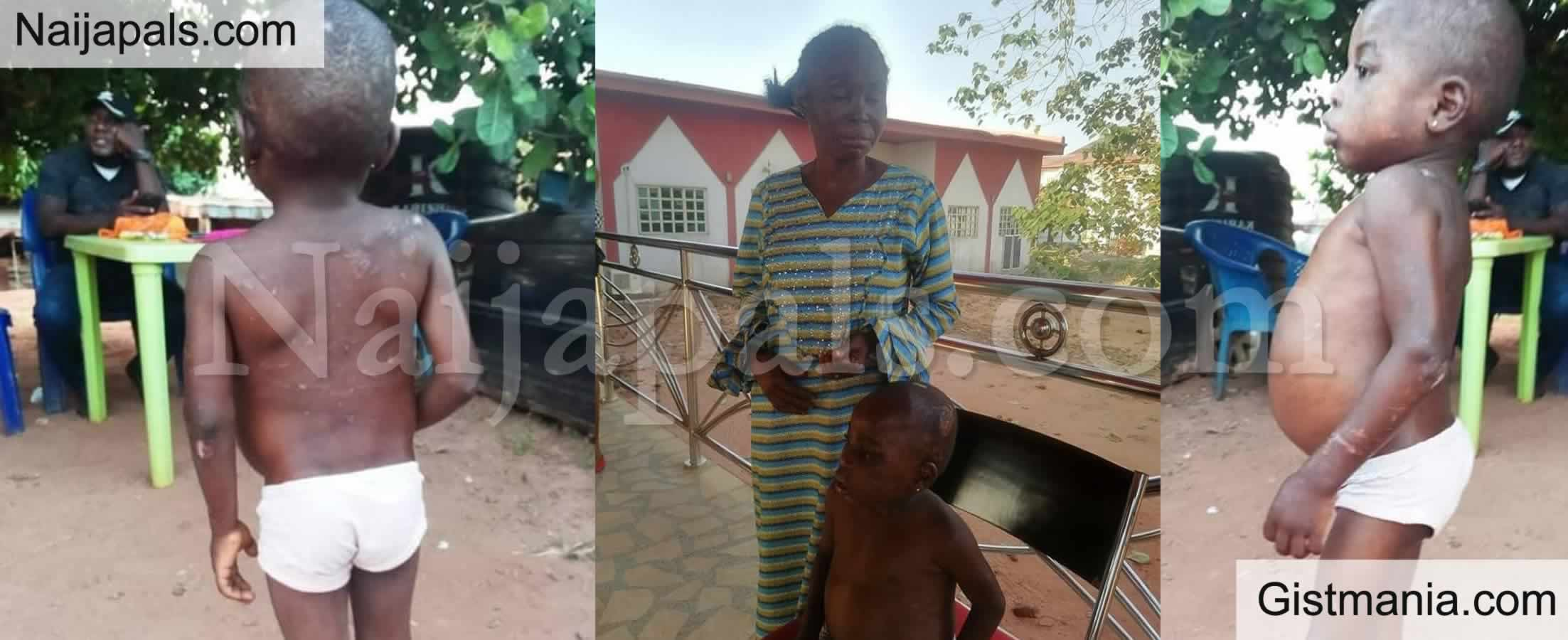 <img alt='.' class='lazyload' data-src='https://img.gistmania.com/emot/smh.gif' /> SMH!<b> Photos Of 6 Year Old Child Tortured And Starved By Her Abusive Foster Mother in Anambra</b>