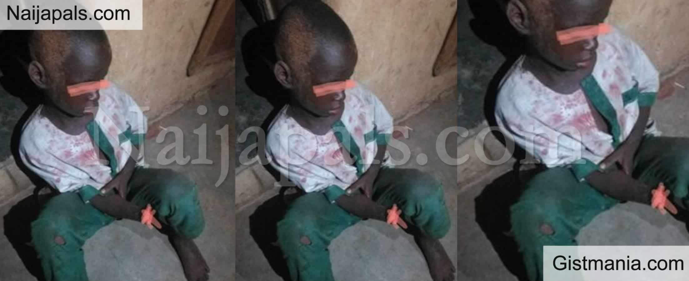 <img alt='.' class='lazyload' data-src='https://img.gistmania.com/emot/shocked.gif' /> <b>7 Year Old Usman Abubakar Found With His Hand Chopped Off By an Unknown Person in Kwara</b>