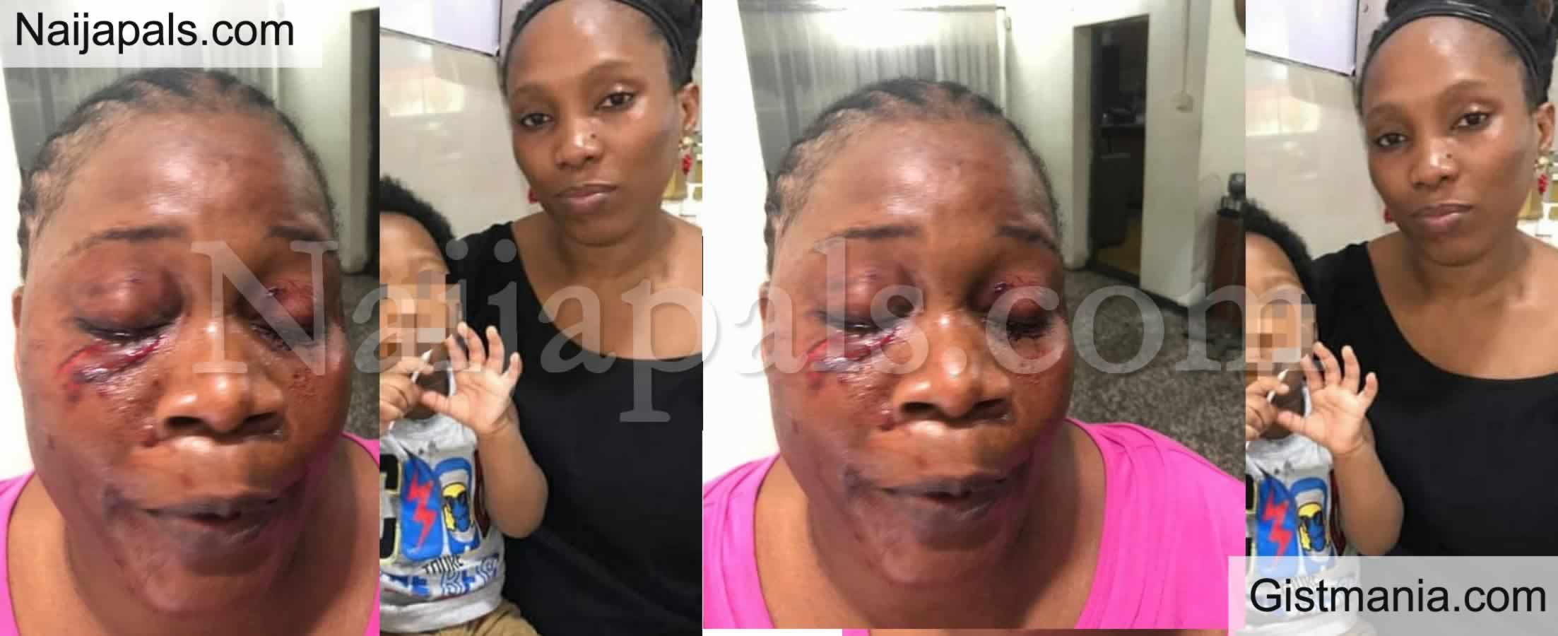 <img alt='.' class='lazyload' data-src='https://img.gistmania.com/emot/photo.png' /> <b>Woman, Ada Onadeko Disfigures Her Neighbour's Face For Reporting Her Actions In The Compound</b>