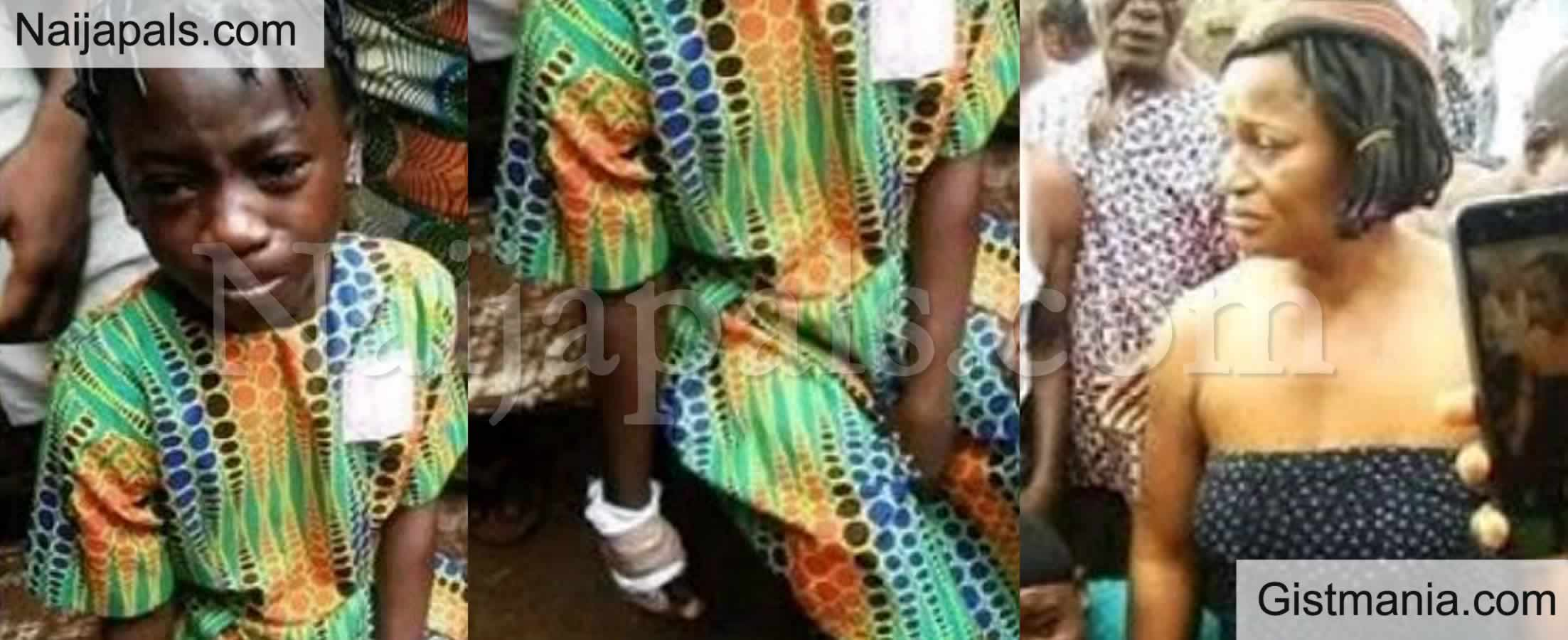 <img alt='.' class='lazyload' data-src='https://img.gistmania.com/emot/shocked.gif' /> OMG! <b>Woman Chops Off The Thumb of Her Niece Who Lives With Her in Onitsha</b> (SHOCKING PHOTOS)